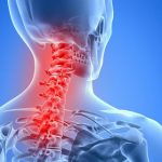 How Neck Inflammation Causing Headaches ?