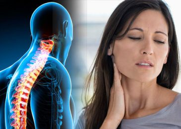 Arthritis in the Neck – Symptoms, Diagnosis, and Treatments