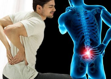 8 Causes and Precautions for Chronic Back Pain