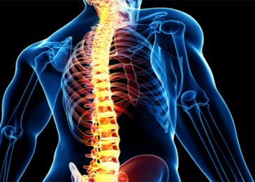 Spinal Fusion- Quick Guide